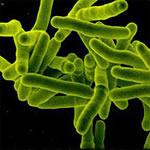 Le mycobacterium bovis : responsable de la tuberculose du bétail ; il